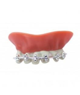 Dentier avec appareil dentaire